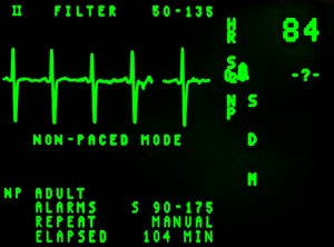 heart-rate-diabetes-risk