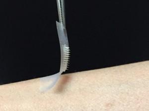 smart-insulin-patch
